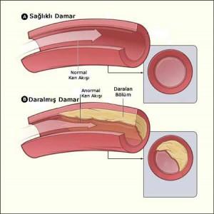dolasim-sistemi-hastaliklari