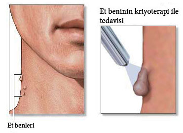 Kriyoterapi ile cilt tedavisi